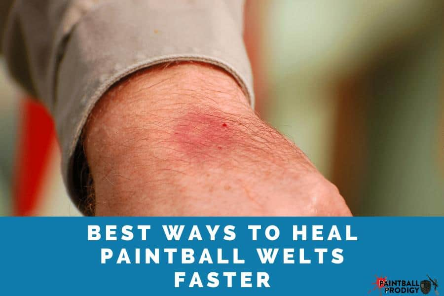 best way to heal paintball welts